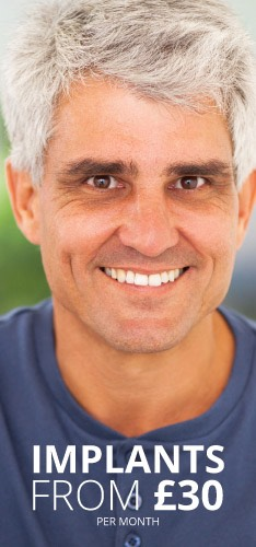 Dental Implants from £30 at Didsbury Dental Practice