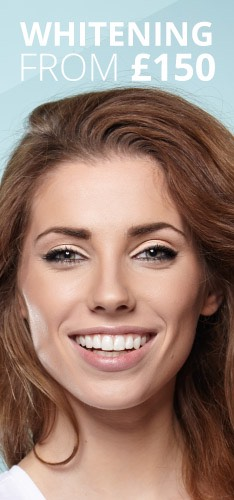 Teeth Whitening from £150 at Didsbury dental practice in manchester
